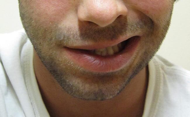 paralisis facial consecuencia de ictus