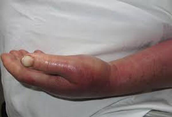 sintomas graves del ictus